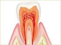 従来の歯科治療は削って治すが一般的でした