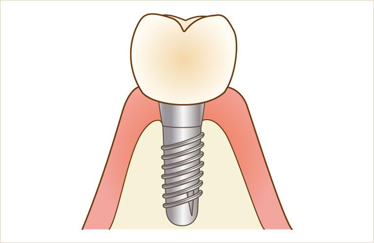 おおいし歯科のインプラント