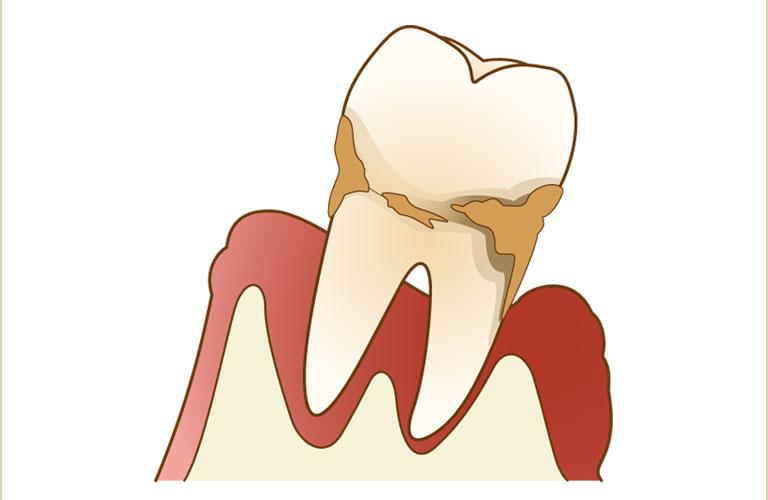 本当に怖い歯周病