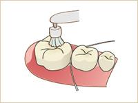 おおいし歯科の歯科衛生士によるクリーニング