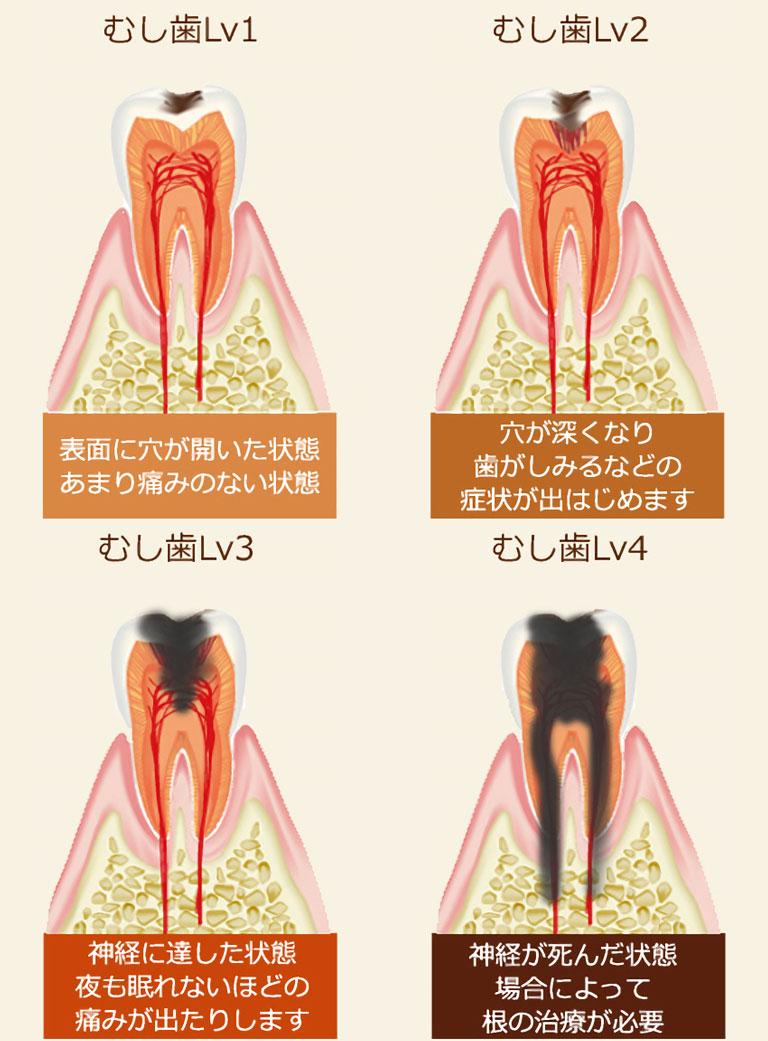虫歯になるとこうなります