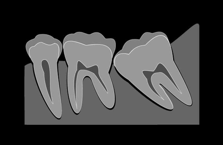 おおいし歯科の歯科口腔外科
