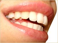 おおいし歯科の審美歯科・ホワイトニング